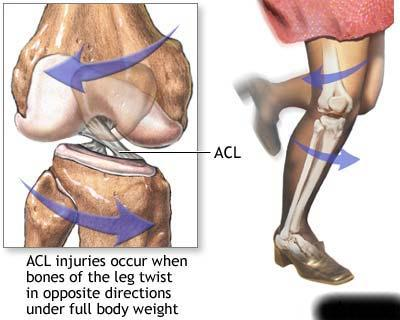 """These findings suggest that training the central control process—the brain and reflexive responses—may be necessary to counter the fatigue induced ACL injury risk,"" said McLean, who also has an appointment with the U-M Bone & Joint Injury Prevention Center."